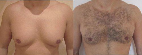Perdre sa poitrine et ses seins pour les hommes