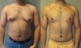 Témoignage sur la perte de seins pour les hommes et brûler ses graisses de poitrine