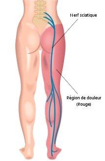 Identifier la source nerveuse et l'origine de la sciatique contre le mal de dos grâce à SOS Sciatique