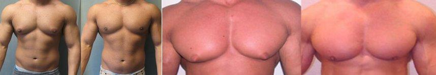 Comment faire fondre vos seins d'homme avec le gynectrol de crazybulk