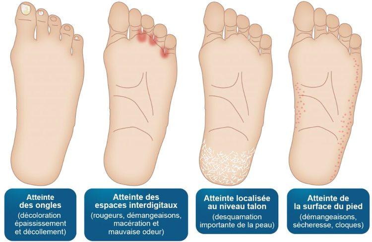 Mycose d'ongles des pieds : différentes mycoses