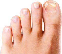 Mycoses des orteils et ongles de pieds : méthodes efficaces